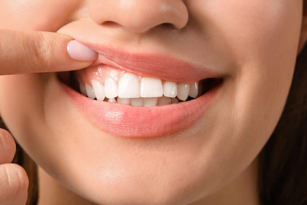 Three Healthy Habits for Great Gums