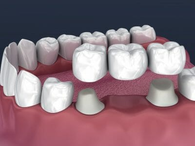 An example of a bridge being put into the mouth