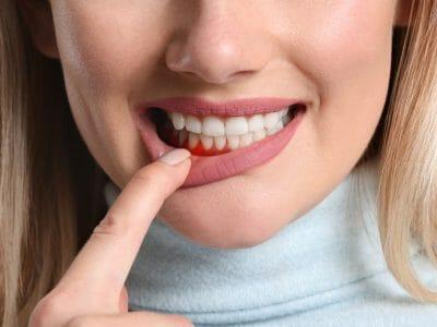 A woman that shows periodontal disease