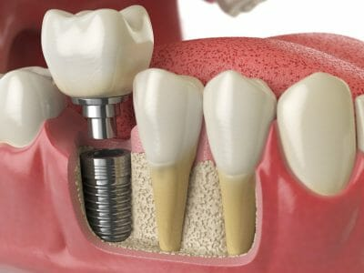 showing the different components of a dental implant