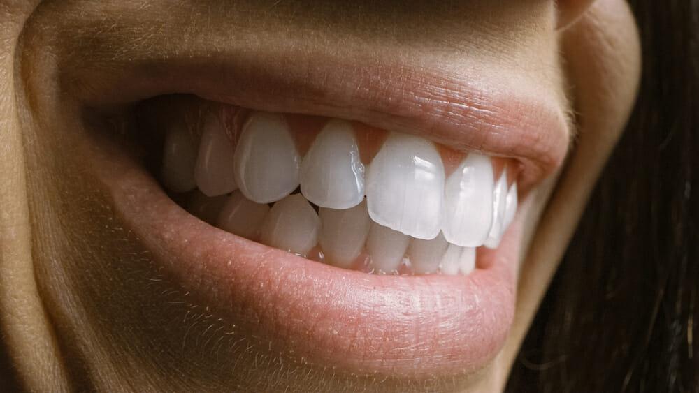 Dental Implants and Periodontal Disease